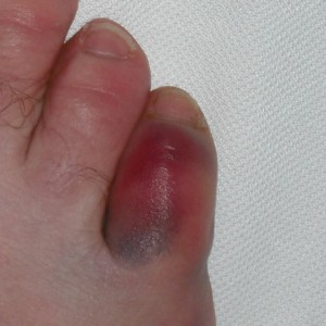 pin sprained your pinky toe and went on crutches tell me